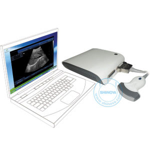Ultrasound Scanner Box (with 3D imaging) (BoxScan 10V) pictures & photos