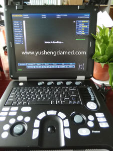 CE Approved Digital Portable Laptop Ultrasound Machine Ysd4100A pictures & photos