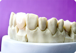 Co-Cr Porcelain Crowns with Vita Ceramic Outside pictures & photos