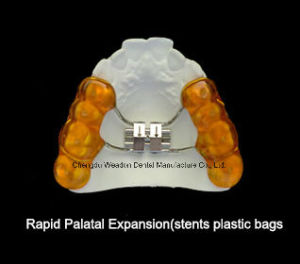 Rapid Palatal Expansion Orthodontic pictures & photos