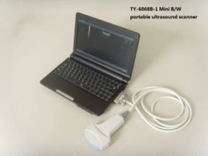 Portable Ultrasound Scanner with One Convex Probe (TY-6858A-1) pictures & photos