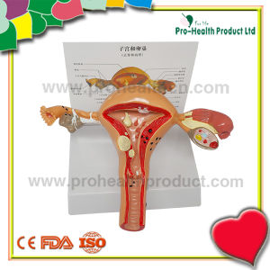 Normal & Pathological 3D plastic Ovary Uterus Anatomical Model pictures & photos