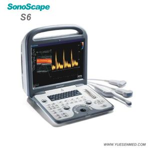 Sonoscape S6 15 Inch LCD Color Monitor Color Doppler Portable Ultrasound Device pictures & photos