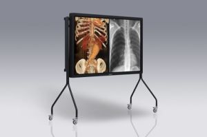 (JUSHA-SUPER65T) Grayscale and Color Auto-Calibration Group Consultation Medical Display pictures & photos