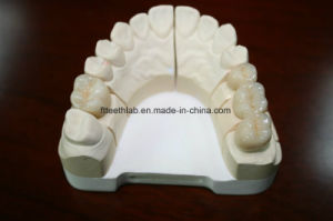 Zirconia Crown pictures & photos