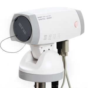 Ce Approved Electronic Colposcope Sony Camera CCD 800, 000 Pixels for Vulva Vagina Cervis-Candice pictures & photos