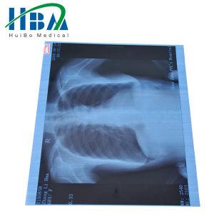 Medical Dry Film/X-ray Film