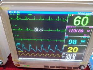 "15"" TFT Multi-Parameter Monitor Patient Monitors pictures & photos"