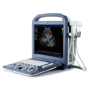 3D 4D Portable Color Doppler Ultrasound Scanner, Sonoscape S2 pictures & photos