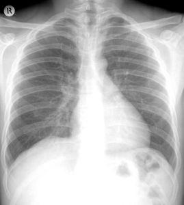 FUJI Medical X-ray Film 24X30cm Green Sensitive / Radio Film pictures & photos