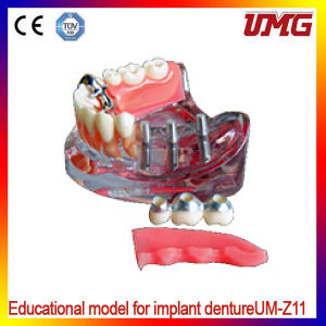 Dental Teeth Models and Implants Communication Model for Dentist pictures & photos