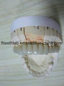 Dental Pfm Bridge pictures & photos