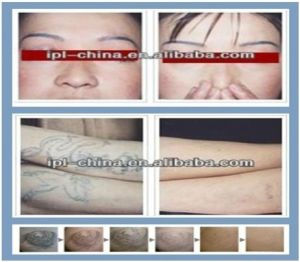 Medical 1064nm 532nm 585nm 650nm ND YAG Tattoo Removal Laser pictures & photos