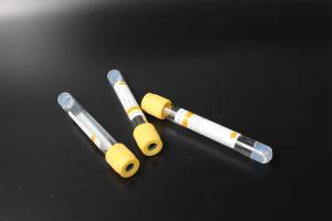 Non-Vacuum Tube (Gel & Clot Activator) pictures & photos