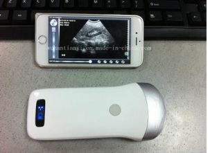 Mobile Phone iPad WiFi Available Wireless Ultrasound Device pictures & photos