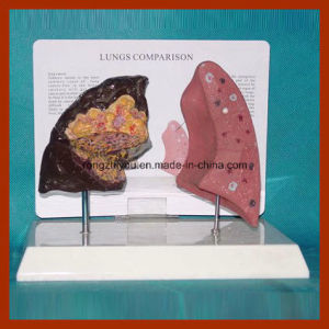 Health and Disease Lungs Comparison Model pictures & photos