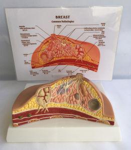 Breast Pathologies Anatomic Education Model pictures & photos