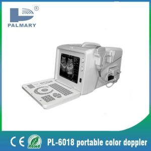 Cheap B&W Digital Diagnostic Ultrasound with Transducers pictures & photos