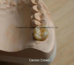 Full Zorconic Crown Denture pictures & photos
