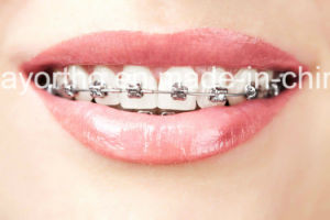 Dental Orthodontic MIM Mbt Bondable Self-Ligating Bracket pictures & photos