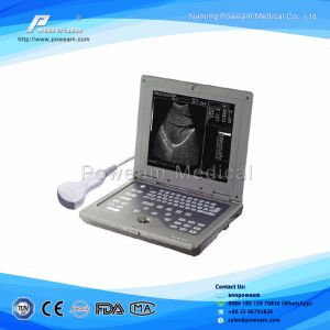 Factory Price 10.4 Inch Laptop Ultrasound Scanner with Linear Probe pictures & photos