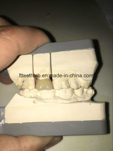 Porcelain Fused Metal Dental Crown pictures & photos