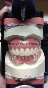 Removable Acrylic Partial Denture pictures & photos