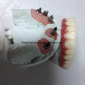 Dental Cemented Implant Bridge pictures & photos