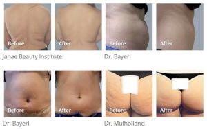 Best Cellulite Removal Body Slimming Machine pictures & photos