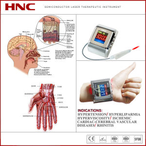 Hnc Factory Directly Selling Infrared Light Therapy for Diabetes Instrument pictures & photos
