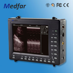 Palmsize Black&White Ultrasound MFC2000 pictures & photos