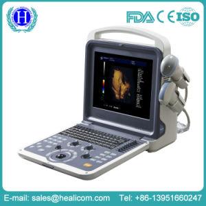 4D Full Digital Portable Color Doppler Scanner Ultrasound pictures & photos