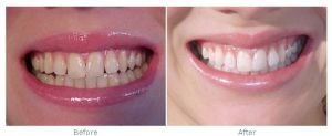 Dentel Teeth Whitening LED Light Machine pictures & photos