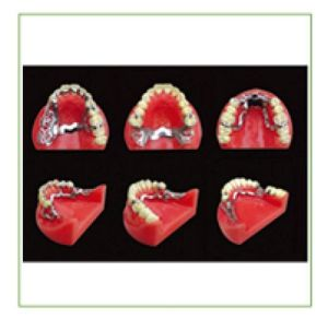 TM-F5 Partially Edentulous Model for Dental Teaching pictures & photos