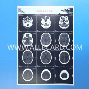 Medical Laser Printed Dental X Ray Film Blue pictures & photos