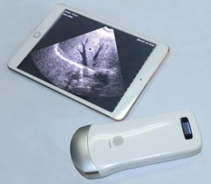Portable Android Ios Device Compatible Ultrasound Diagnostic System pictures & photos