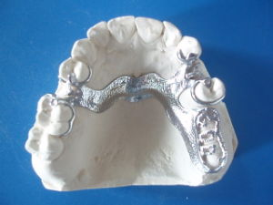 Dental Casting Partial Denture Supplies in China Dental Lab pictures & photos