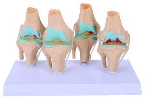 High Quality Skeleton Knee Joint Set Model pictures & photos