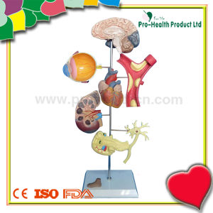 Medical Plastic Hypertension Teaching Model pictures & photos