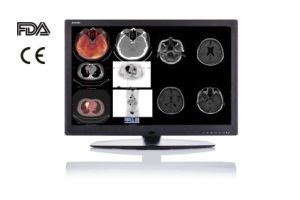 "30"" Diagnostic Monitor for CT MRI CE FDA pictures & photos"