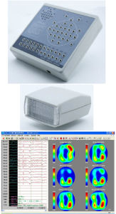 Digital EEG (and Mapping System 24/32 Channel) pictures & photos