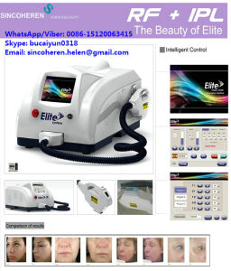 Eligt for Skin Rejuvenation Model and Hair Removal Device /Beauty Salon Device pictures & photos