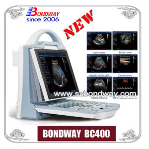 Digtial Portable Color Doppler (BC400)