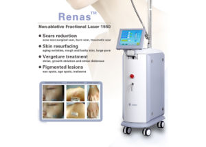 Medical Equipment- Hair Removal, Acne Scars Reduction (GP915) pictures & photos