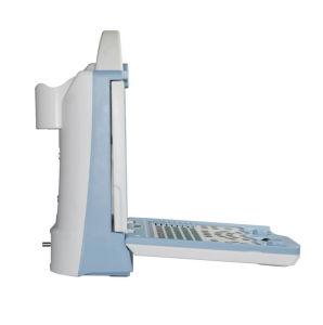 Portable Full Digital B Mode Ultrasound Scanner for Animal (KX5600VET) pictures & photos