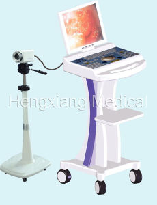 Digital Color Colposcope (ME-002) pictures & photos