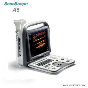 2017 Veterinary Portable Ultrasound Machine Sonoscape A5V pictures & photos