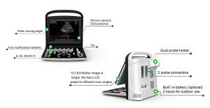 Medical Hospital Chison Eco3 Portable Laptop Good Price Ultrasound Equipment pictures & photos
