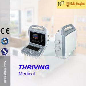 Portable Color Doppler Ultrasound Machine pictures & photos
