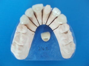 E-Max Crowns and Bridges Veneers, Onlays Inlays Made in China Dental Laboratory pictures & photos